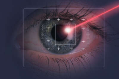 Lasik Eye Surgery in Houston