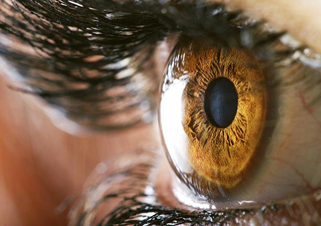 Corneal Transplant, eye surgeon Houston