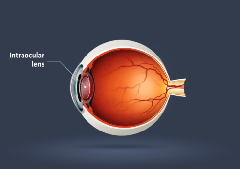 Origins of Eye Treatments: Cataract Surgery - Houston