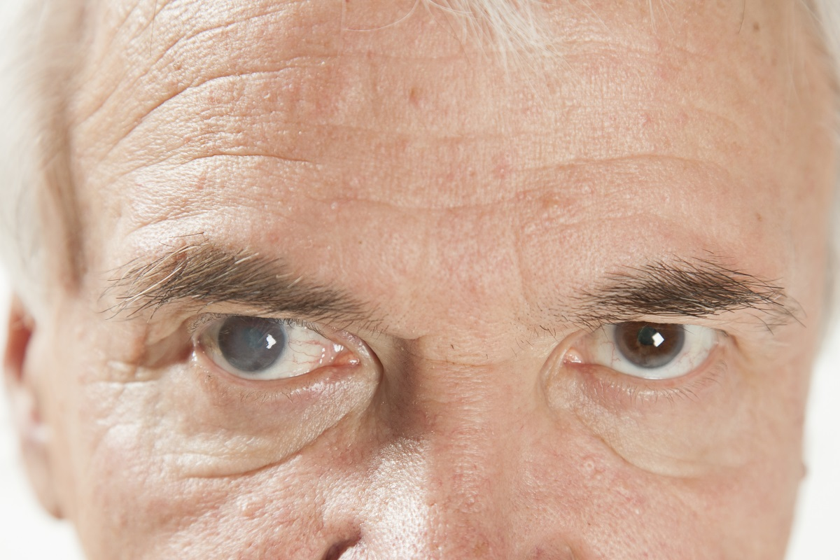 It's Time for Cataract Surgery When…