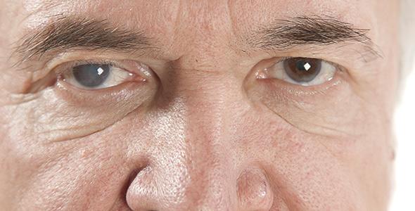 houston-Latest-Innovations-cataract-surgery